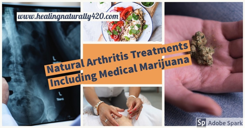 Natural Arthritis Treatments Including Medical Marijuana